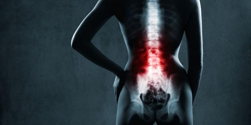 Die Sakralisierung der Wirbel l5: was es ist, Symptome, Ursachen ...
