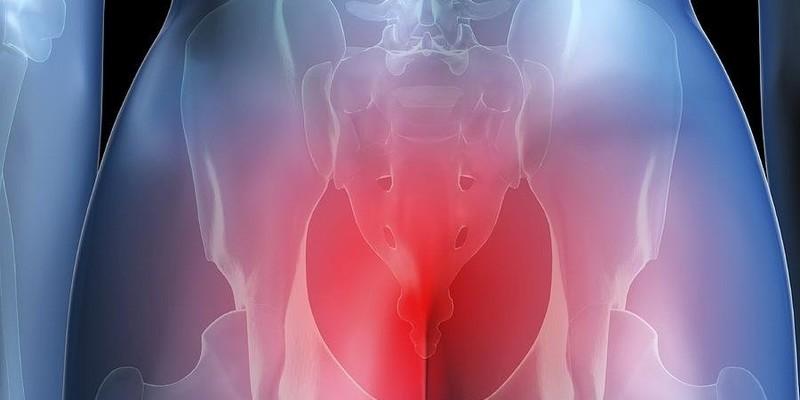 Möglichkeiten der Behandlung von Bursitis des Kniegelenks zu Hause