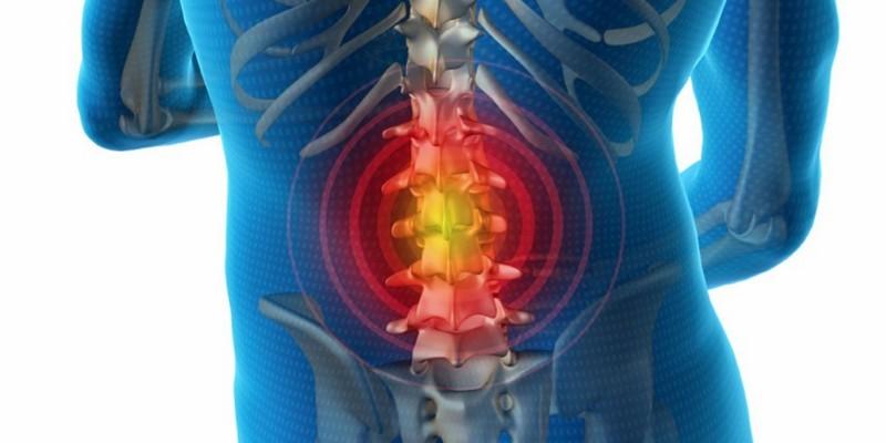 Bandscheibenvorfall der Brustwirbelsäule: Ursachen, Symptome, Behandlung