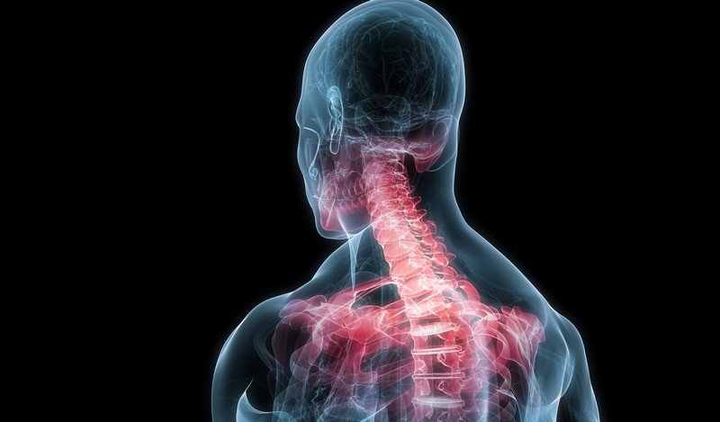 Schmerzen in den Schultern und Nacken, gibt in die Schulter, was es ...