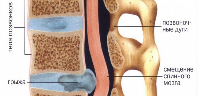 Schmerzen Zwischen Schulterblatt Und Wirbelsäule